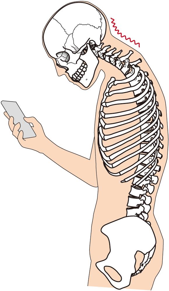 281b66ab47246f70bb58bccb059ea544 姿勢の悪さがコリと痛みを発生させる