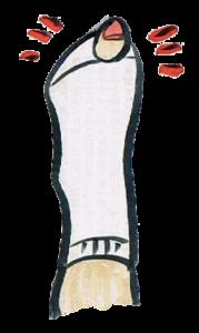 632816-179x300 靴下の穴の位置で見るカラダのこと