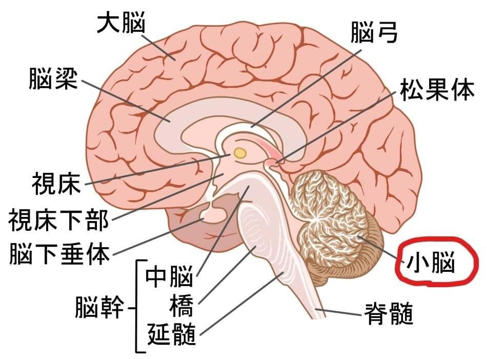 IMG_3970 転倒予防トレーニング・小脳編